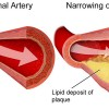 Cholesterol plaque
