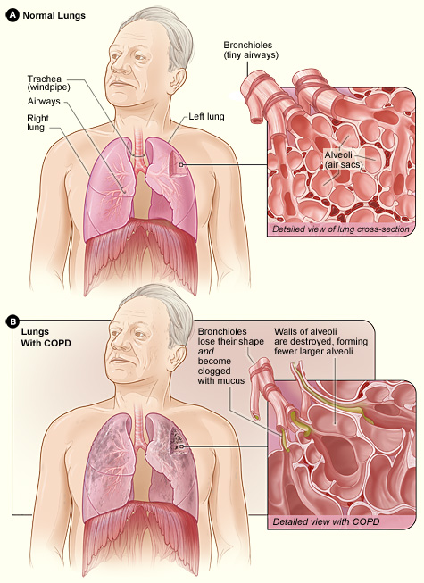 copd lungs detection breathing