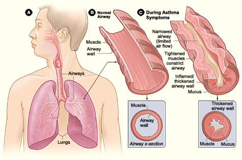 asthma lungs breathe